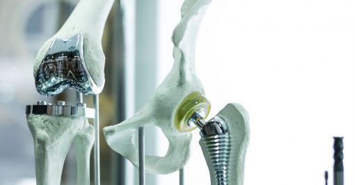 Image of knee and hip replacement